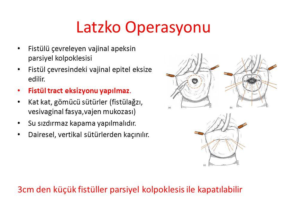 Katmanlı (Layered) Kapama Daha distal ve kompleks fistüllerde gereklidir.