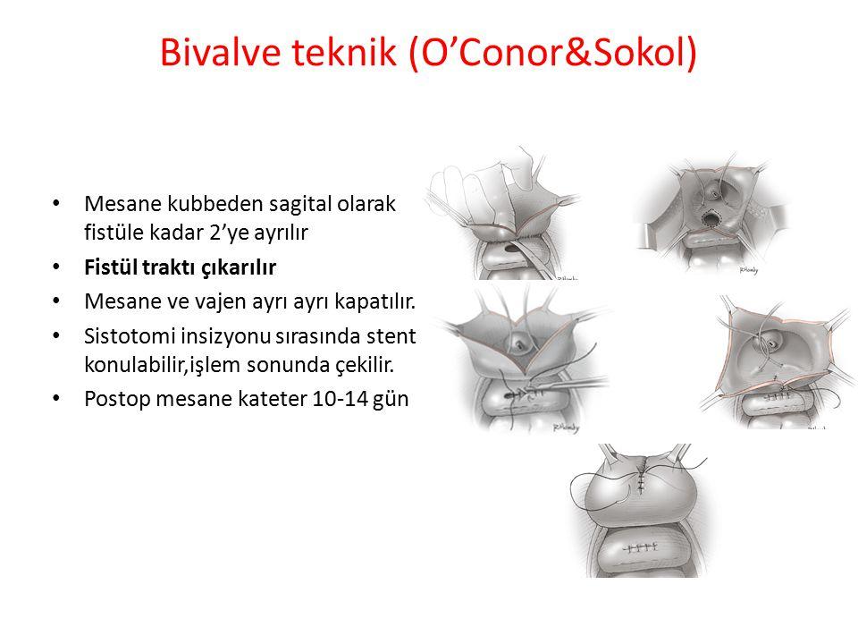 Sütür hatlarını ayırmak için - omental flap - peritoneal flap - mesane mukoza otograftı