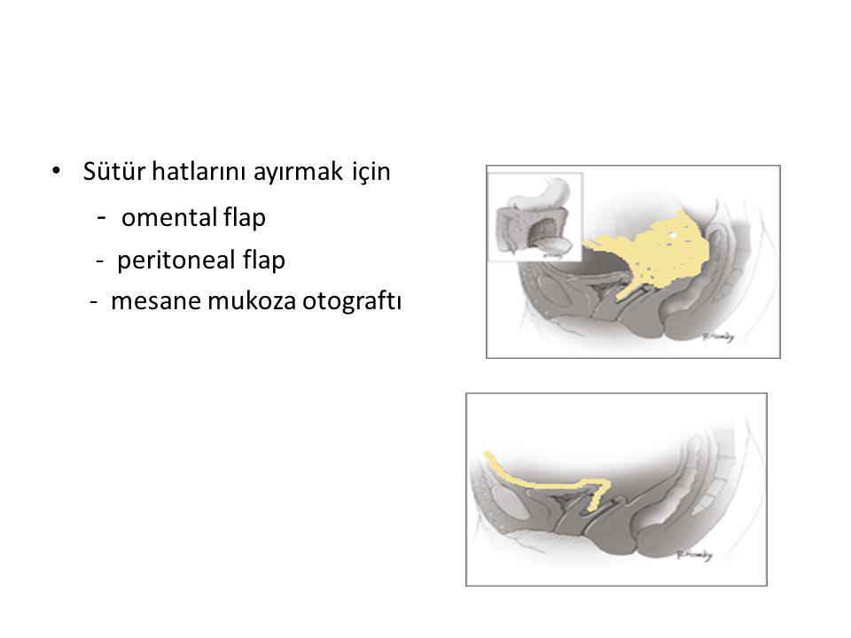 Transvesikal yöntem Mesane kubbeden açılır.
