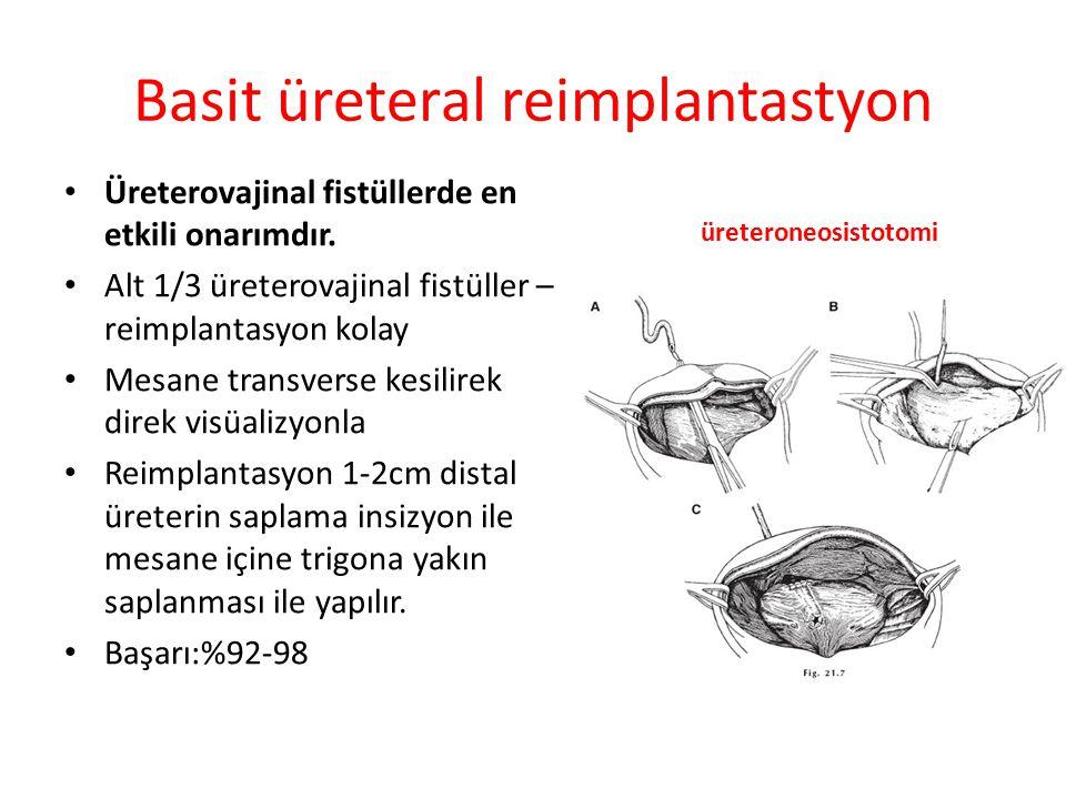 Boari Flap Distal üreterin önemli bir bölümü etkilendi ise; Boari flap, anastomozu pelvik grime kadar yükseğe taşır.