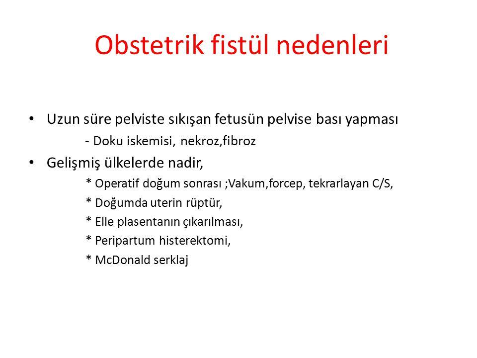Fistül yönetiminde en önemli faktörler 1.Tanı sırasında yüksek klinik şüphe 2.