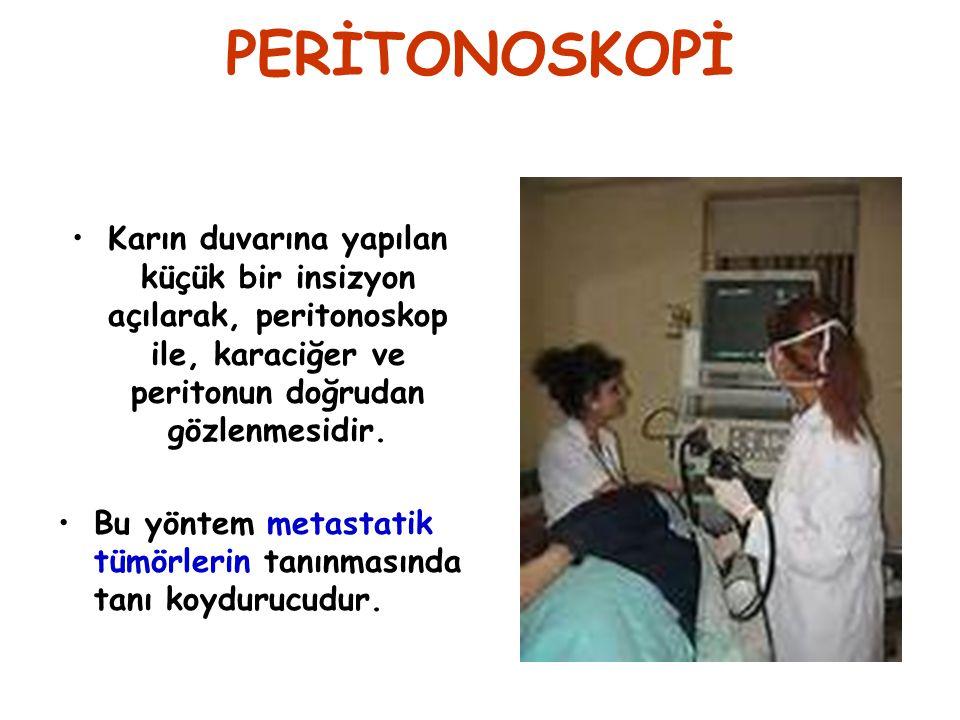 PERİTONOSKOPİ Karın duvarına yapılan küçük bir insizyon açılarak, peritonoskop ile, karaciğer ve peritonun doğrudan gözlenmesidir. Bu yöntem metastati