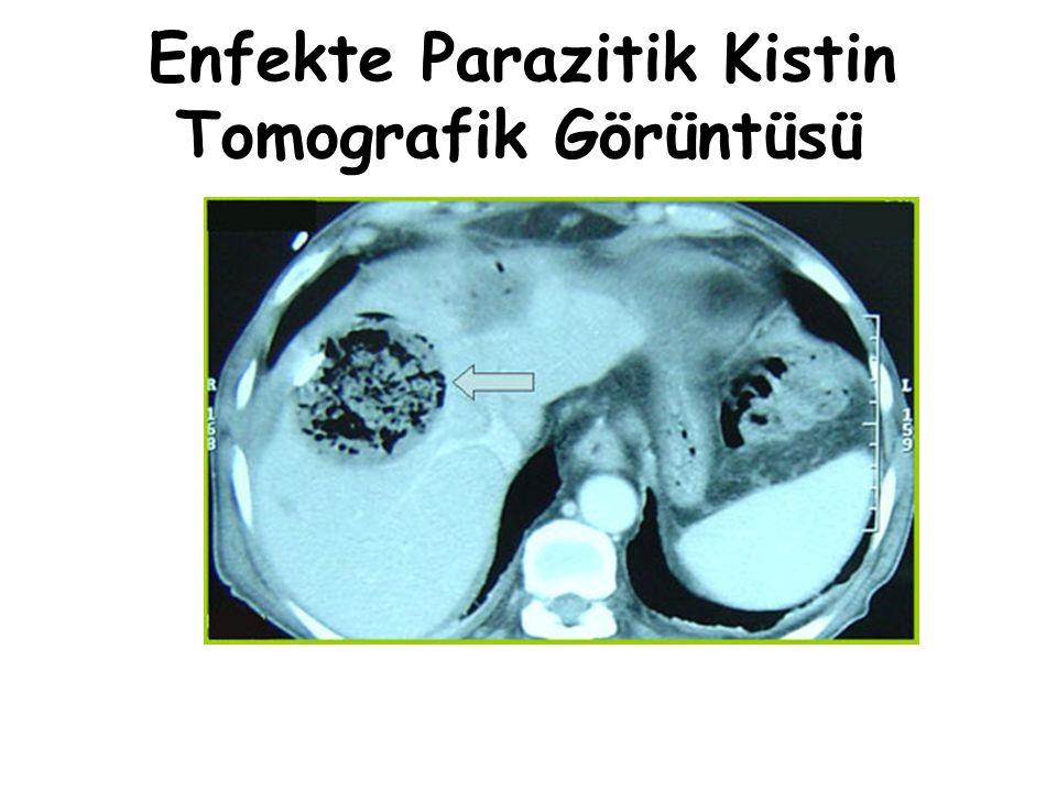Enfekte Parazitik Kistin Tomografik Görüntüsü