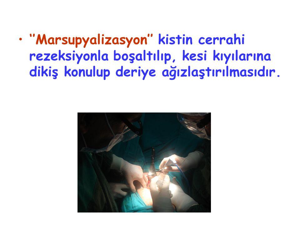 ''Marsupyalizasyon'' kistin cerrahi rezeksiyonla boşaltılıp, kesi kıyılarına dikiş konulup deriye ağızlaştırılmasıdır.