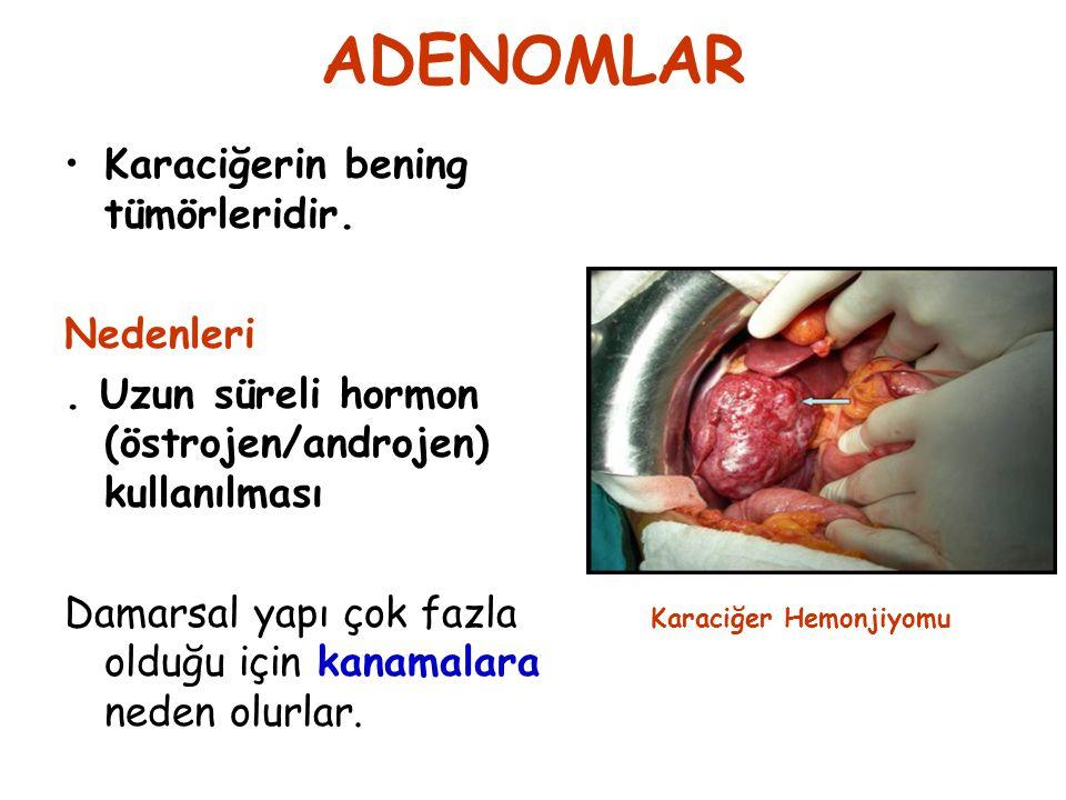 ADENOMLAR Karaciğerin bening tümörleridir. Nedenleri. Uzun süreli hormon (östrojen/androjen) kullanılması Damarsal yapı çok fazla olduğu için kanamala
