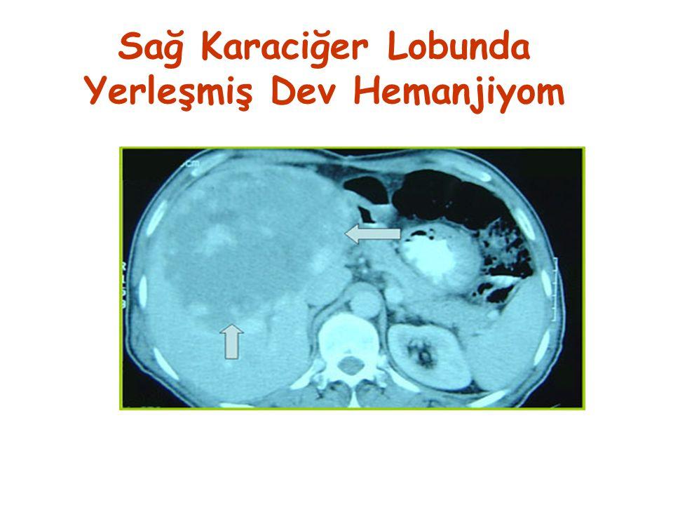 Sağ Karaciğer Lobunda Yerleşmiş Dev Hemanjiyom