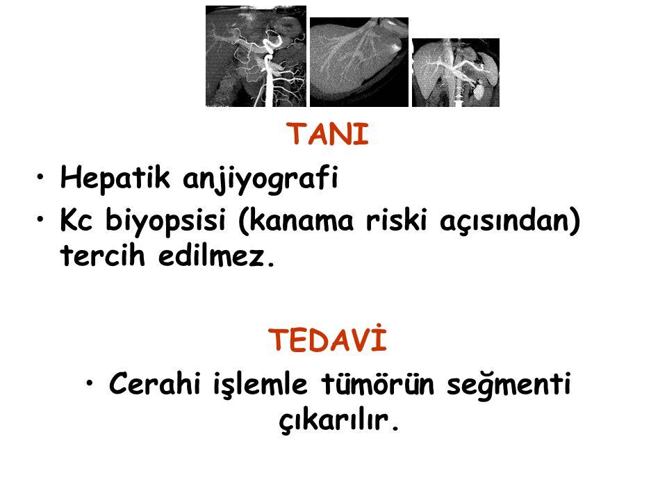 TANI Hepatik anjiyografi Kc biyopsisi (kanama riski açısından) tercih edilmez. TEDAVİ Cerahi işlemle tümörün seğmenti çıkarılır.