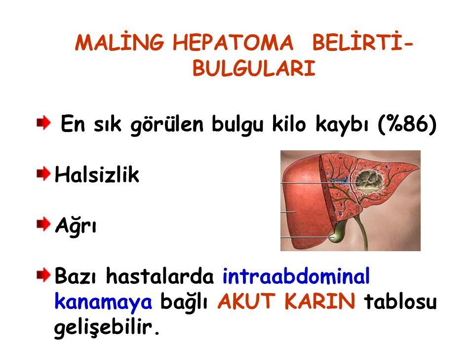 MALİNG HEPATOMA BELİRTİ- BULGULARI En sık görülen bulgu kilo kaybı (%86) Halsizlik Ağrı Bazı hastalarda intraabdominal kanamaya bağlı AKUT KARIN tablo