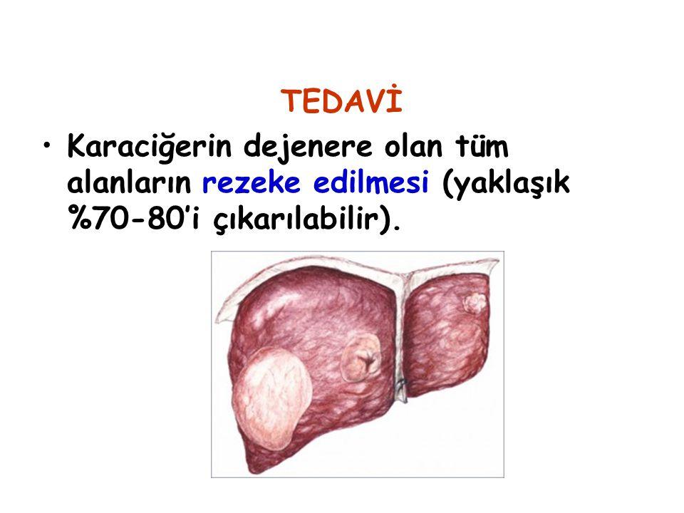 TEDAVİ Karaciğerin dejenere olan tüm alanların rezeke edilmesi (yaklaşık %70-80'i çıkarılabilir).