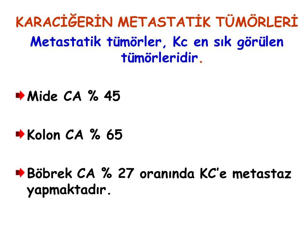 KARACİĞERİN METASTATİK TÜMÖRLERİ Metastatik tümörler, Kc en sık görülen tümörleridir. Mide CA % 45 Kolon CA % 65 Böbrek CA % 27 oranında KC'e metastaz