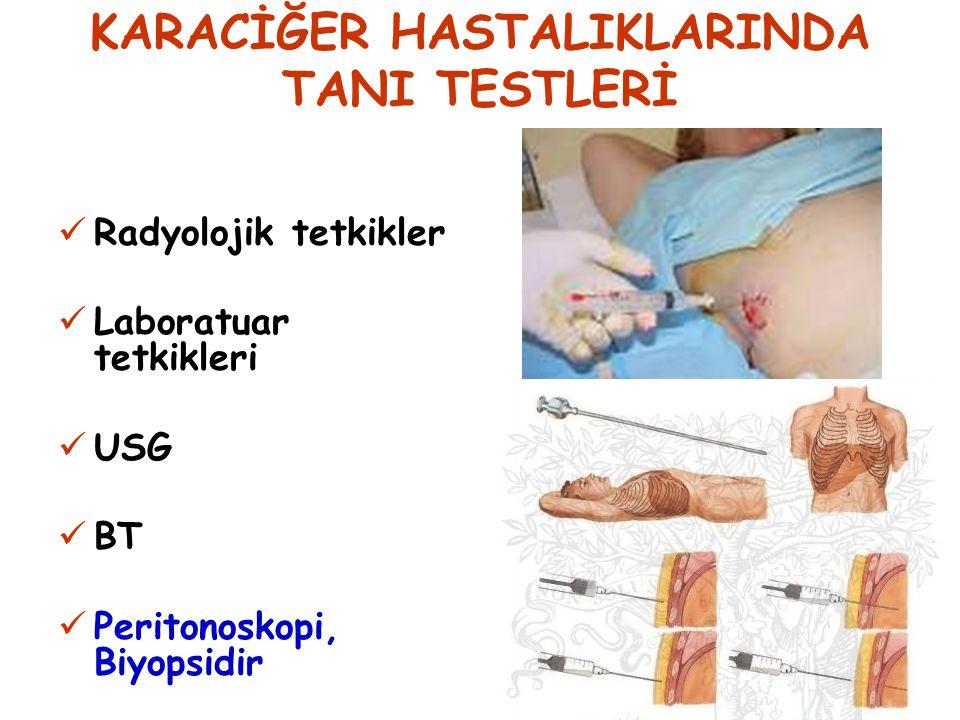 KC TÜMÖRLERİNDE TEDAVİ Cerrahidir Kemoterapi Radyoterapi KC Tüm.