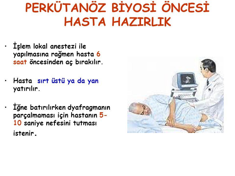 PERKÜTANÖZ BİYOPSİ SONRASI BAKIM-I Hasta 24 saat yatak istirahatine alınır.