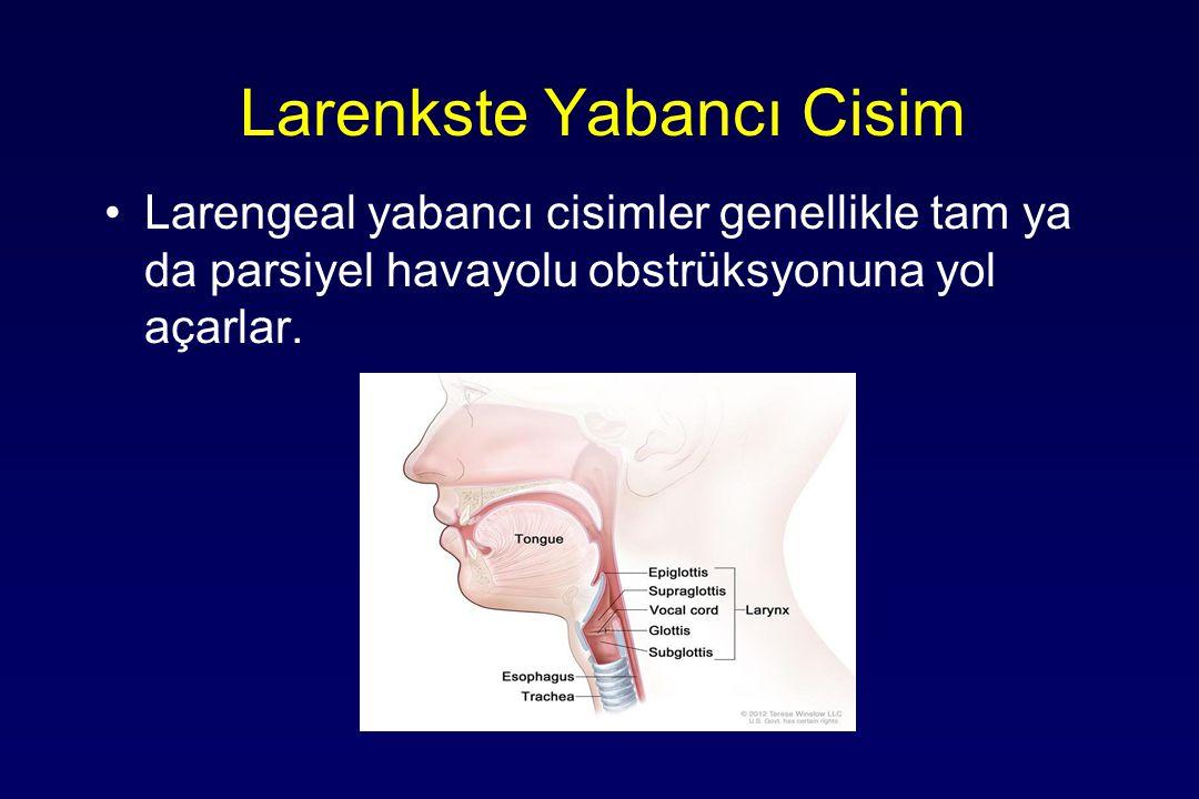 Tedavi Otoskopi & otomikroskopik muayene Forceps & Buşon küreti Büyük ve impakte Y.C cerrahi gerekebilir Canlı Y.C önce öldürmek gerekir