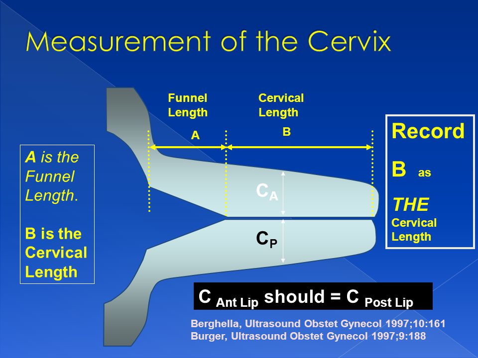 Funnel Length Cervical Length A B Berghella, Ultrasound Obstet Gynecol 1997;10:161 Burger, Ultrasound Obstet Gynecol 1997;9:188 Record B as THE Cervic