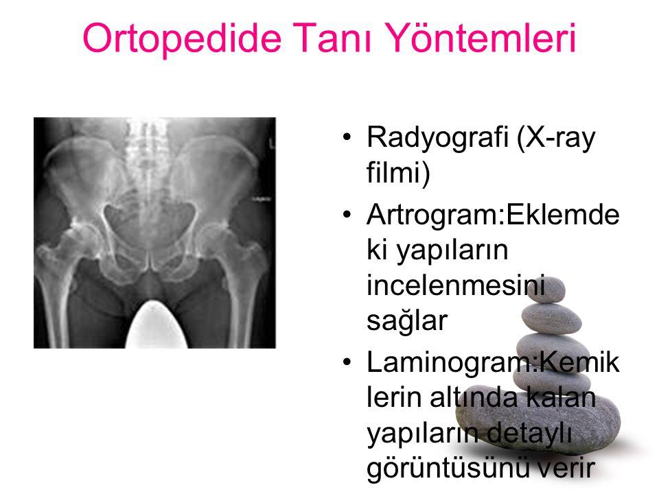 Ortopedide Tanı Yöntemleri Radyografi (X-ray filmi) Artrogram:Eklemde ki yapıların incelenmesini sağlar Laminogram:Kemik lerin altında kalan yapıların