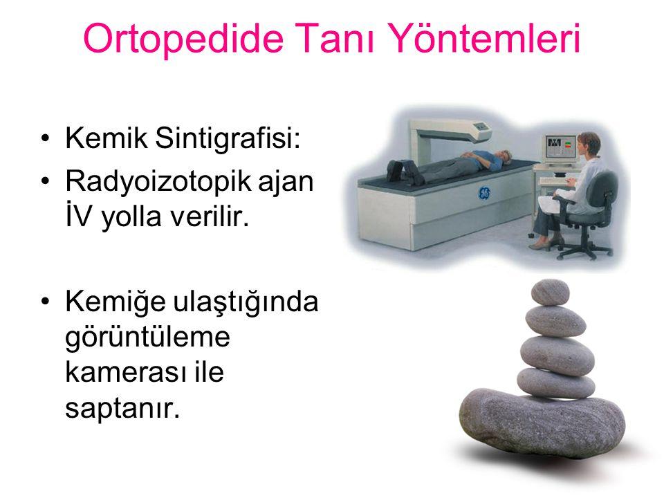 Ortopedide Tanı Yöntemleri Kemik Sintigrafisi: Radyoizotopik ajan İV yolla verilir. Kemiğe ulaştığında görüntüleme kamerası ile saptanır.