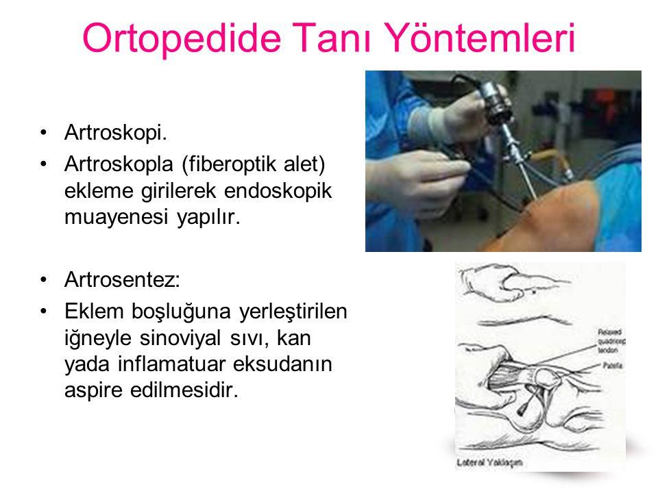Ortopedide Tanı Yöntemleri Artroskopi. Artroskopla (fiberoptik alet) ekleme girilerek endoskopik muayenesi yapılır. Artrosentez: Eklem boşluğuna yerle