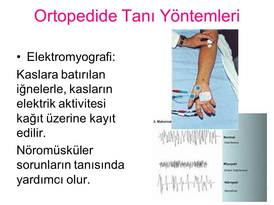 Ortopedide Tanı Yöntemleri Elektromyografi: Kaslara batırılan iğnelerle, kasların elektrik aktivitesi kağıt üzerine kayıt edilir. Nöromüsküler sorunla