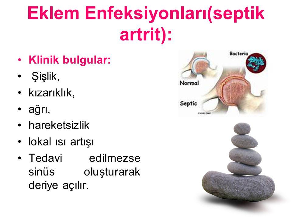 Eklem Enfeksiyonları(septik artrit): Klinik bulgular: Şişlik, kızarıklık, ağrı, hareketsizlik lokal ısı artışı Tedavi edilmezse sinüs oluşturarak deri