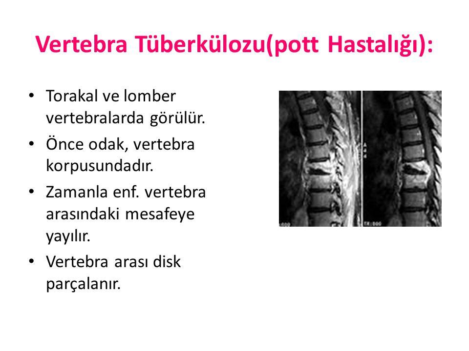 Vertebra Tüberkülozu(pott Hastalığı): Torakal ve lomber vertebralarda görülür. Önce odak, vertebra korpusundadır. Zamanla enf. vertebra arasındaki mes