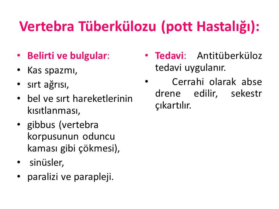 Vertebra Tüberkülozu (pott Hastalığı): Belirti ve bulgular: Kas spazmı, sırt ağrısı, bel ve sırt hareketlerinin kısıtlanması, gibbus (vertebra korpusu