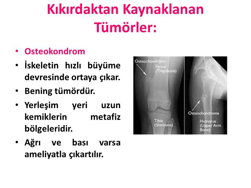 Kıkırdaktan Kaynaklanan Tümörler: Osteokondrom İskeletin hızlı büyüme devresinde ortaya çıkar. Bening tümördür. Yerleşim yeri uzun kemiklerin metafiz