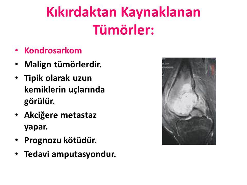 Kıkırdaktan Kaynaklanan Tümörler: Kondrosarkom Malign tümörlerdir. Tipik olarak uzun kemiklerin uçlarında görülür. Akciğere metastaz yapar. Prognozu k