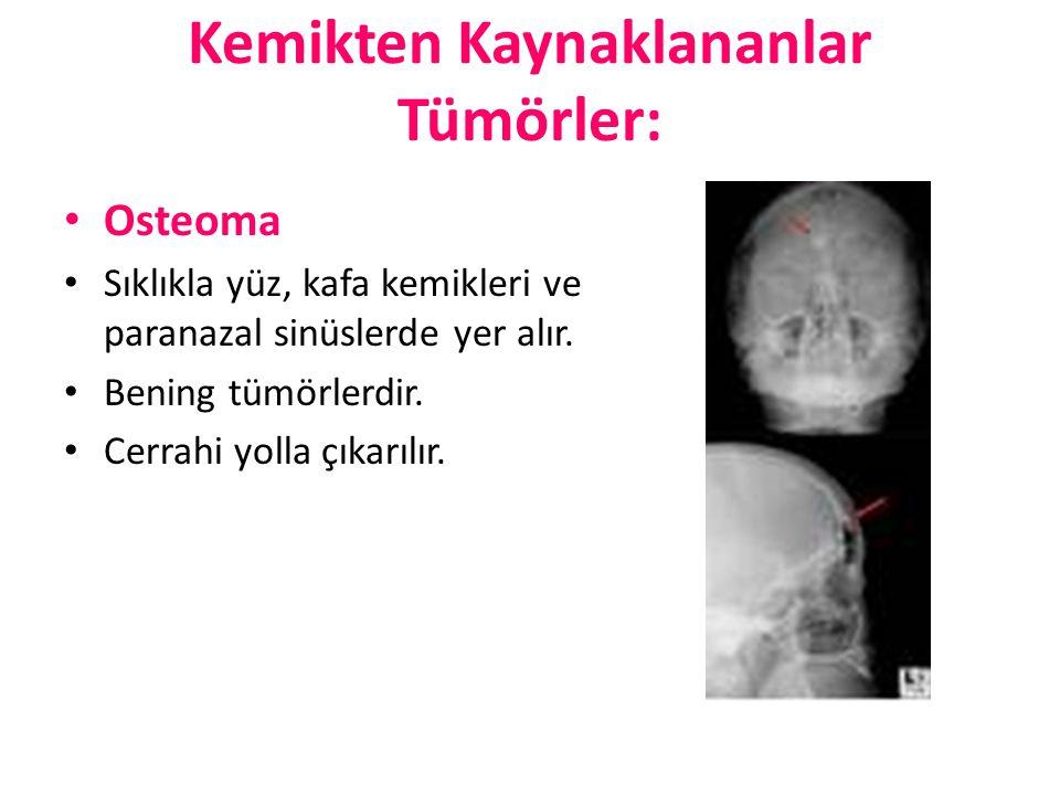Kemikten Kaynaklananlar Tümörler: Osteoma Sıklıkla yüz, kafa kemikleri ve paranazal sinüslerde yer alır. Bening tümörlerdir. Cerrahi yolla çıkarılır.
