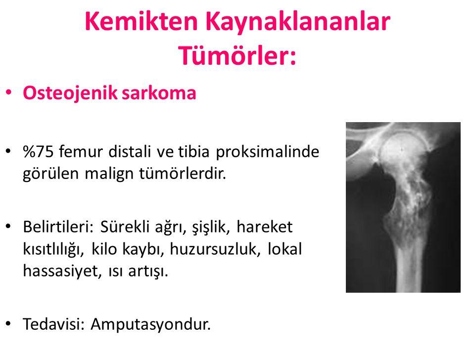 Kemikten Kaynaklananlar Tümörler: Osteojenik sarkoma %75 femur distali ve tibia proksimalinde görülen malign tümörlerdir. Belirtileri: Sürekli ağrı, ş