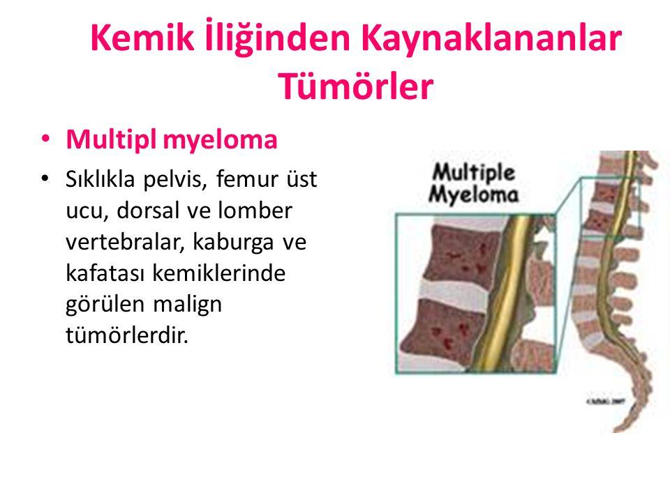 Kemik İliğinden Kaynaklananlar Tümörler Multipl myeloma Sıklıkla pelvis, femur üst ucu, dorsal ve lomber vertebralar, kaburga ve kafatası kemiklerinde