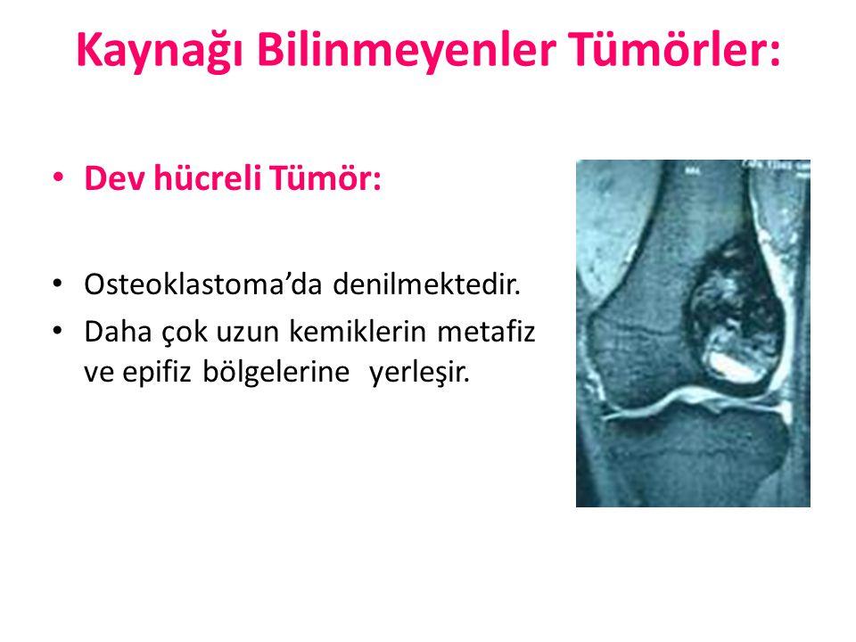 Kaynağı Bilinmeyenler Tümörler: Dev hücreli Tümör: Osteoklastoma'da denilmektedir. Daha çok uzun kemiklerin metafiz ve epifiz bölgelerine yerleşir.