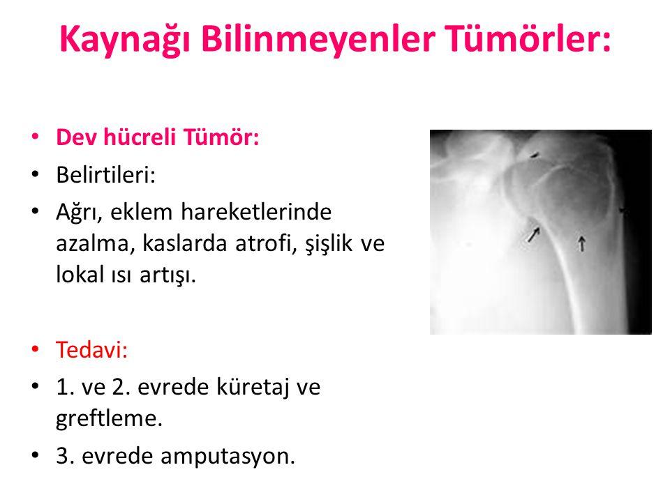 Kaynağı Bilinmeyenler Tümörler: Dev hücreli Tümör: Belirtileri: Ağrı, eklem hareketlerinde azalma, kaslarda atrofi, şişlik ve lokal ısı artışı. Tedavi