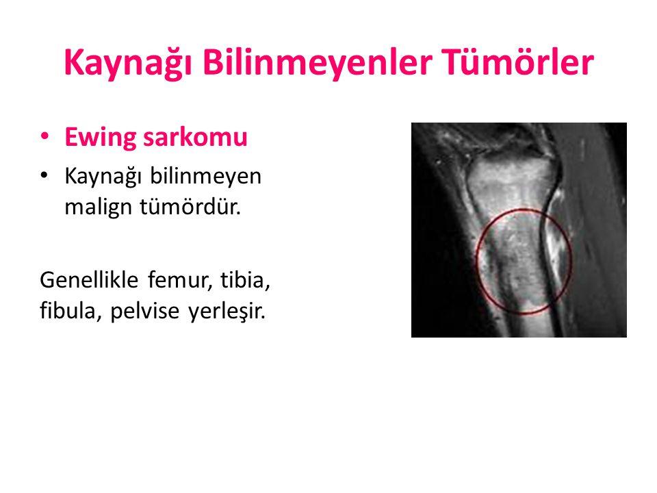 Kaynağı Bilinmeyenler Tümörler Ewing sarkomu Kaynağı bilinmeyen malign tümördür. Genellikle femur, tibia, fibula, pelvise yerleşir.