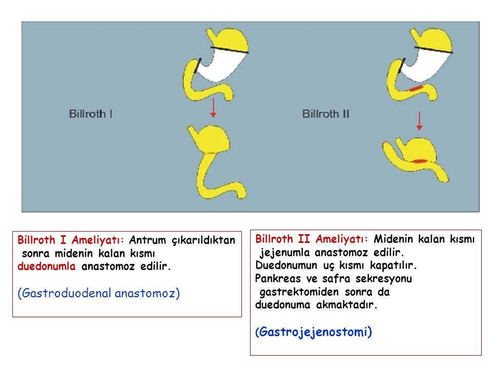 Billroth I Ameliyatı: Antrum çıkarıldıktan sonra midenin kalan kısmı duedonumla anastomoz edilir. (Gastroduodenal anastomoz) Billroth II Ameliyatı: Mi