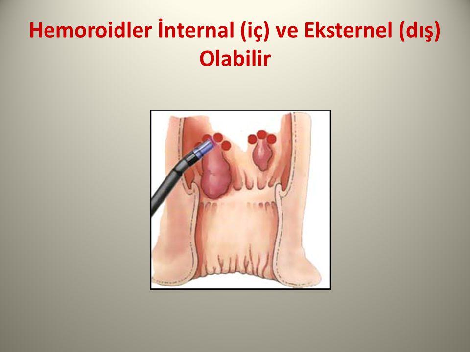 Hemoroidler İnternal (iç) ve Eksternel (dış) Olabilir