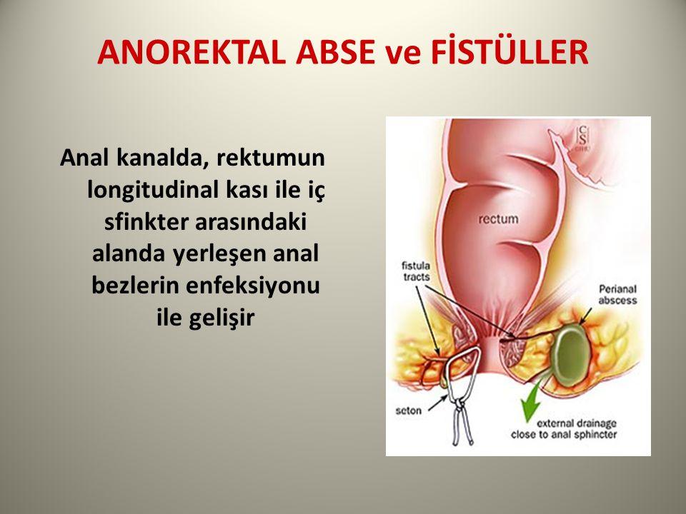ANOREKTAL ABSE ve FİSTÜLLER Anal kanalda, rektumun longitudinal kası ile iç sfinkter arasındaki alanda yerleşen anal bezlerin enfeksiyonu ile gelişir