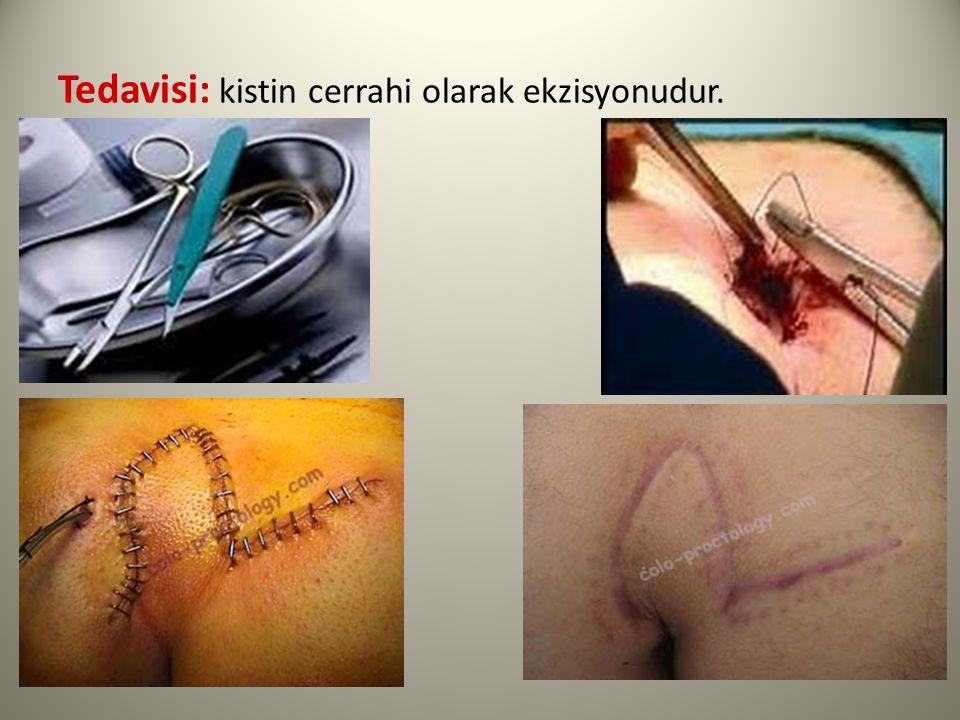 Tedavisi: kistin cerrahi olarak ekzisyonudur.