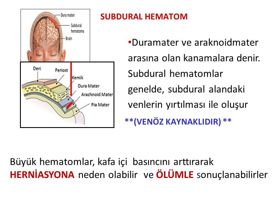 SUBDURAL HEMATOM **(VENÖZ KAYNAKLIDIR) ** Duramater ve araknoidmater arasına olan kanamalara denir.