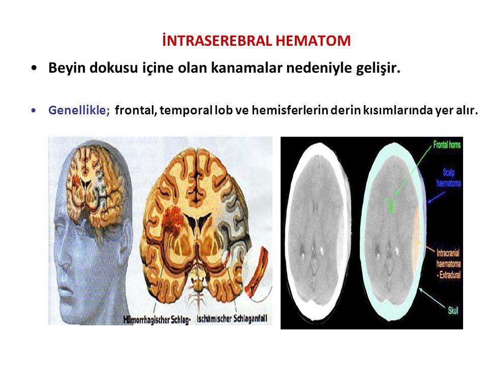 İNTRASEREBRAL HEMATOM Beyin dokusu içine olan kanamalar nedeniyle gelişir. Genellikle; frontal, temporal lob ve hemisferlerin derin kısımlarında yer a