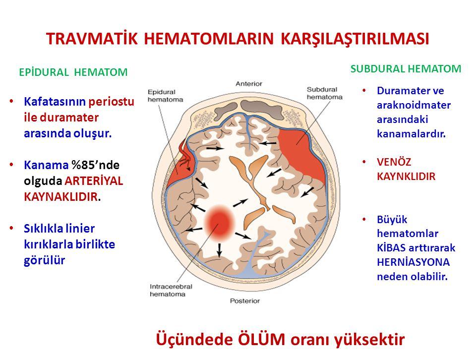 TRAVMATİK HEMATOMLARIN KARŞILAŞTIRILMASI Kafatasının periostu ile duramater arasında oluşur.