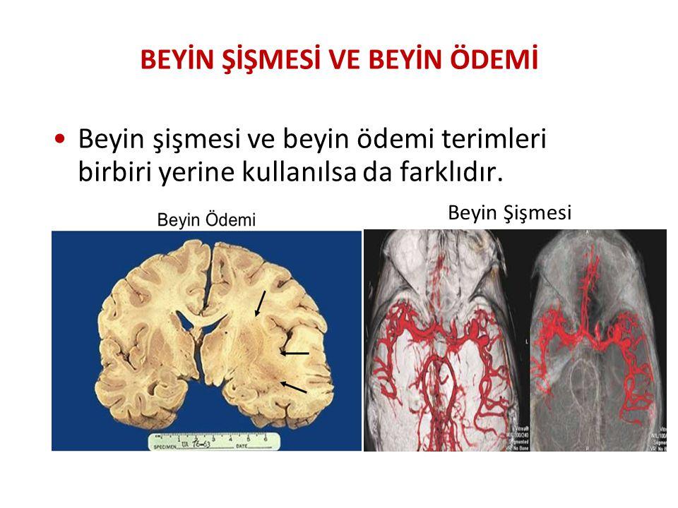 BEYİN ŞİŞMESİ VE BEYİN ÖDEMİ Beyin şişmesi ve beyin ödemi terimleri birbiri yerine kullanılsa da farklıdır. Beyin Şişmesi