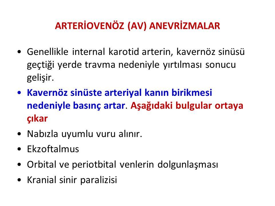 ARTERİOVENÖZ (AV) ANEVRİZMALAR Genellikle internal karotid arterin, kavernöz sinüsü geçtiği yerde travma nedeniyle yırtılması sonucu gelişir. Kavernöz