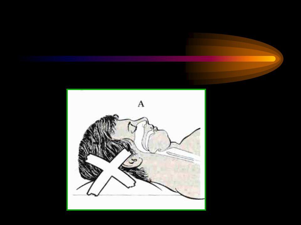 ***** Bilinci kapalı, öksürük, öğürme ve yutma refleksleri deprese kişilerde ET entübasyonla havayolunun korunması sağlanır.