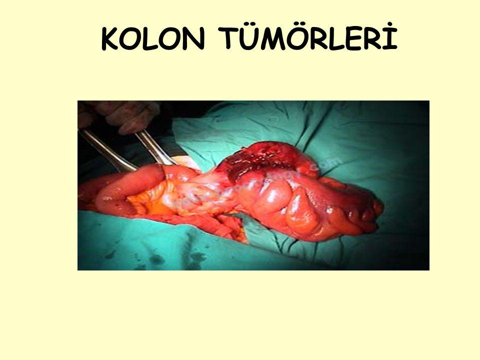 STOMA FİSTÜL Transstomal fistül: Genellikle ileostomilerde, stoma bakımı sırasındaki travmalarla oluşur.
