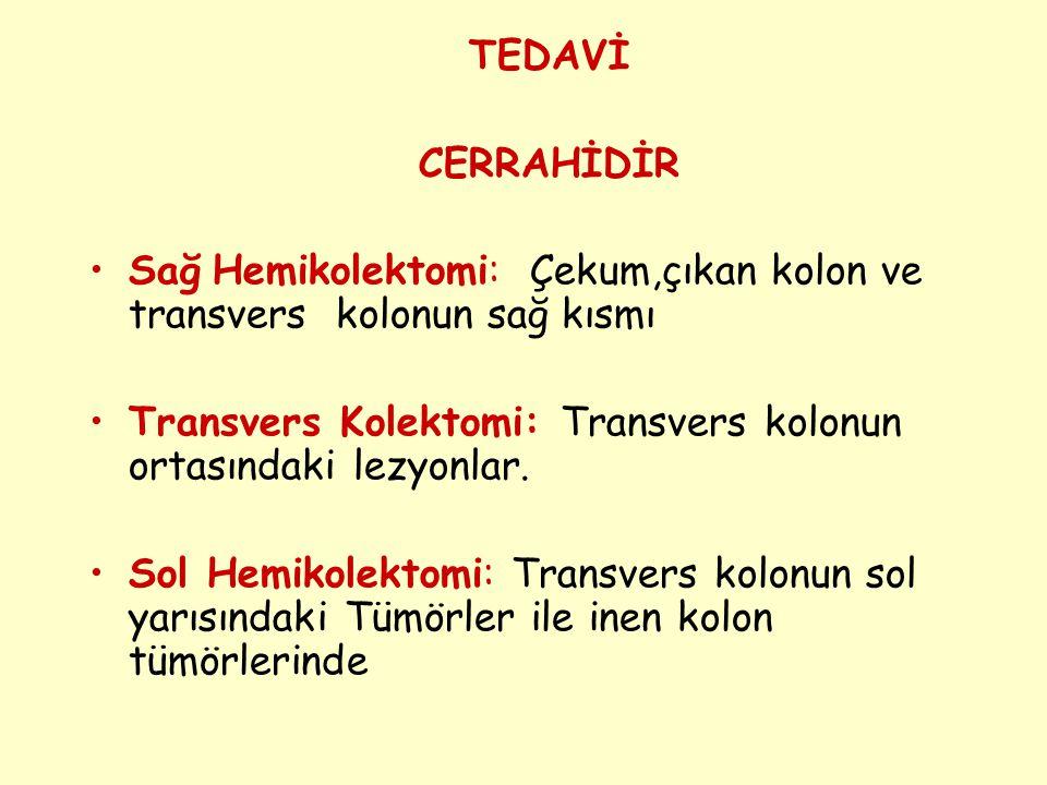 TEDAVİ CERRAHİDİR Sağ Hemikolektomi: Çekum,çıkan kolon ve transvers kolonun sağ kısmı Transvers Kolektomi: Transvers kolonun ortasındaki lezyonlar. So