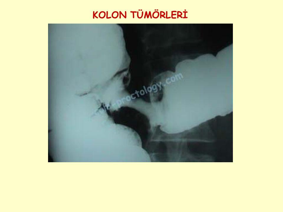 Resim 1 ve 2 Normal Kolonoskopik Görünüm 1 2
