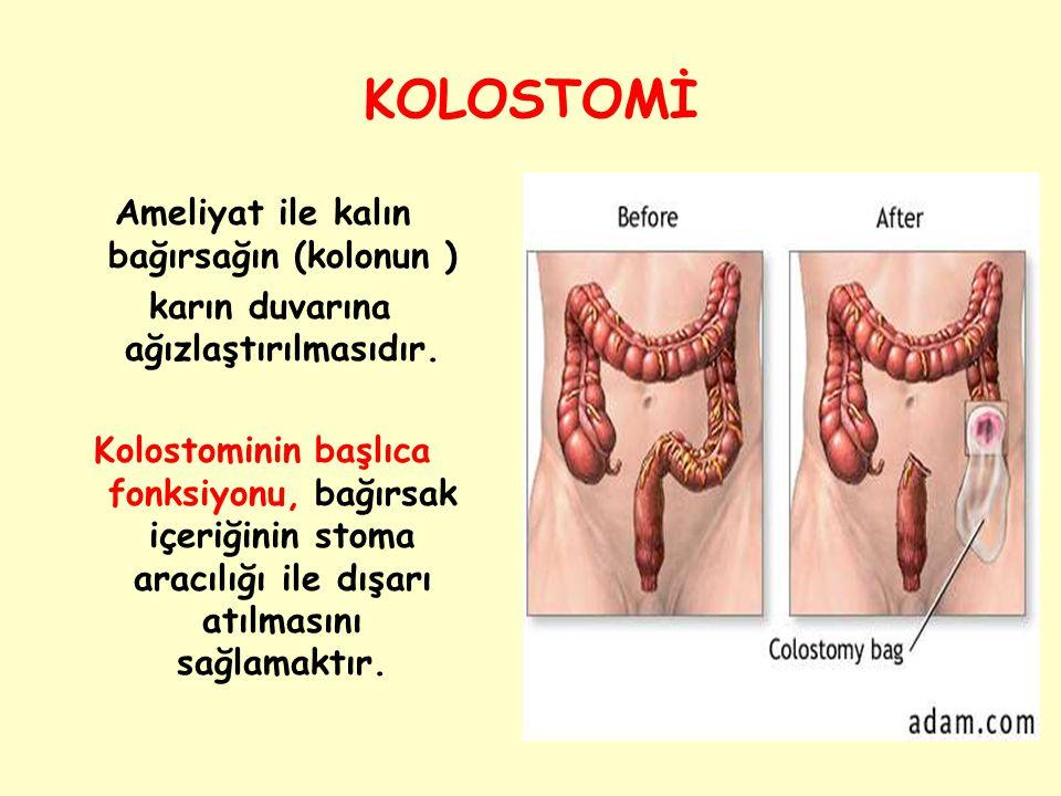 Ameliyat ile kalın bağırsağın (kolonun ) karın duvarına ağızlaştırılmasıdır. Kolostominin başlıca fonksiyonu, bağırsak içeriğinin stoma aracılığı ile