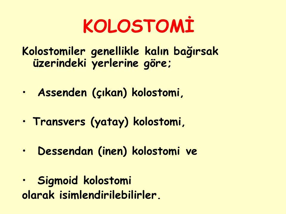 KOLOSTOMİ Kolostomiler genellikle kalın bağırsak üzerindeki yerlerine göre; Assenden (çıkan) kolostomi, Transvers (yatay) kolostomi, Dessendan (inen)