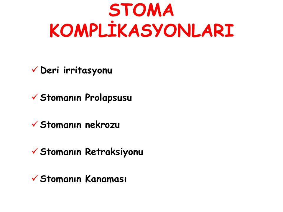 STOMA KOMPLİKASYONLARI Deri irritasyonu Stomanın Prolapsusu Stomanın nekrozu Stomanın Retraksiyonu Stomanın Kanaması