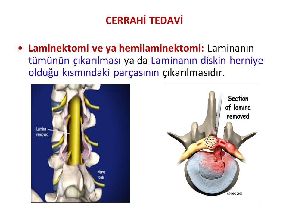 CERRAHİ TEDAVİ Laminektomi ve ya hemilaminektomi: Laminanın tümünün çıkarılması ya da Laminanın diskin herniye olduğu kısmındaki parçasının çıkarılmas